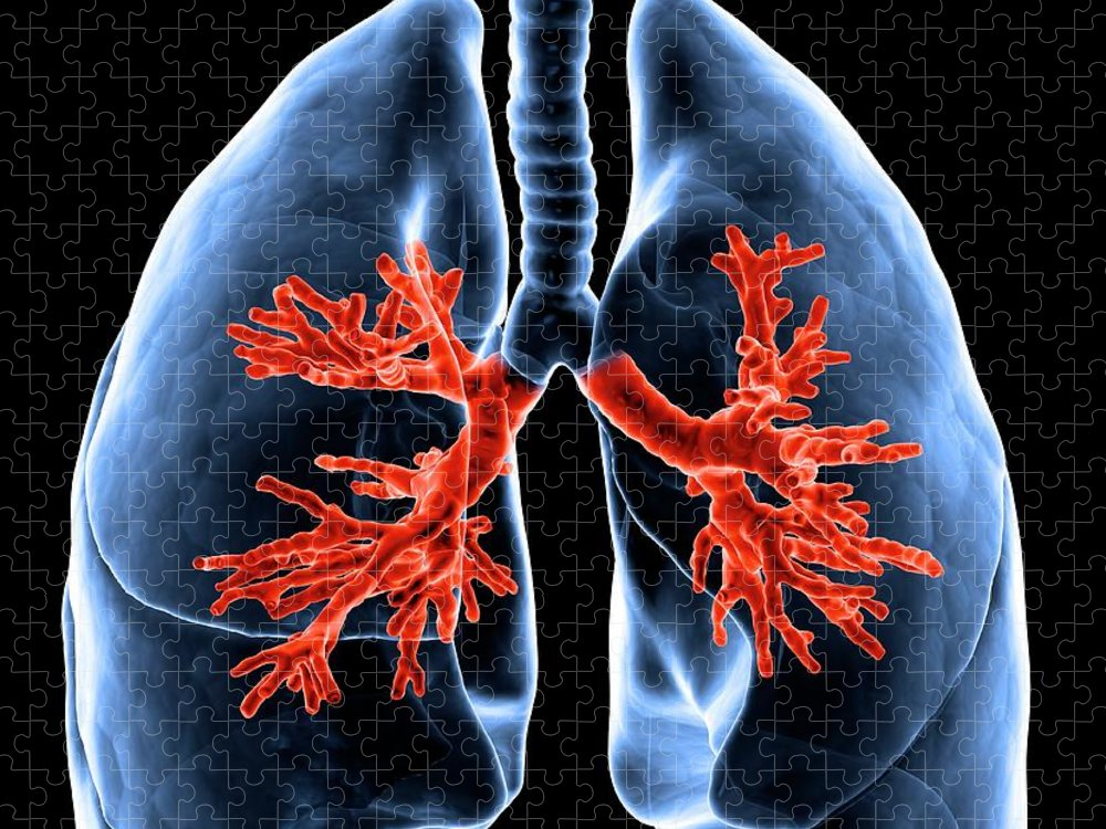 Human Lung Puzzle featuring the digital art Healthy Lungs, Artwork by Science Photo Library - Andrzej Wojcicki