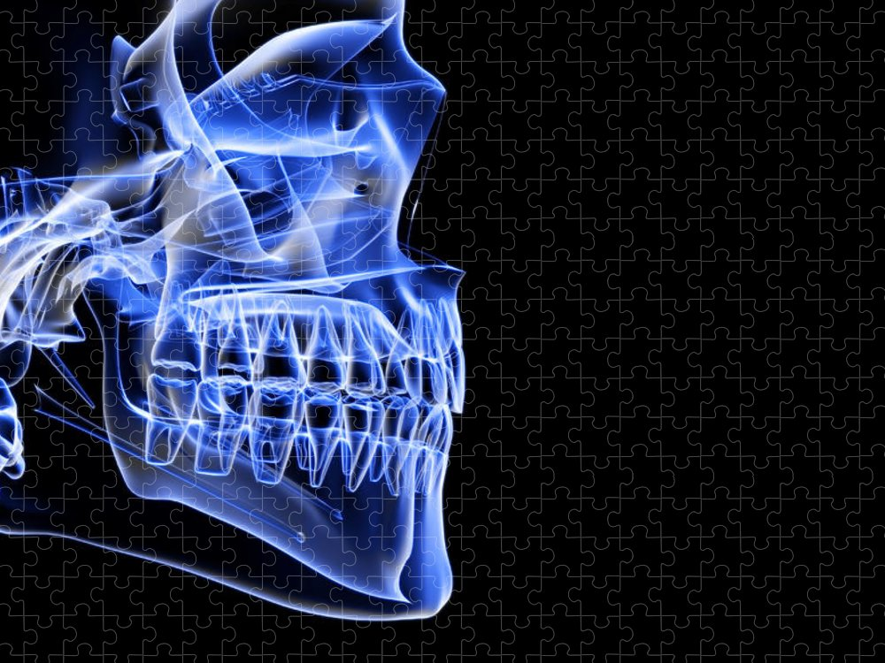 Anatomy Puzzle featuring the digital art The Bones Of The Jaw by Medicalrf.com