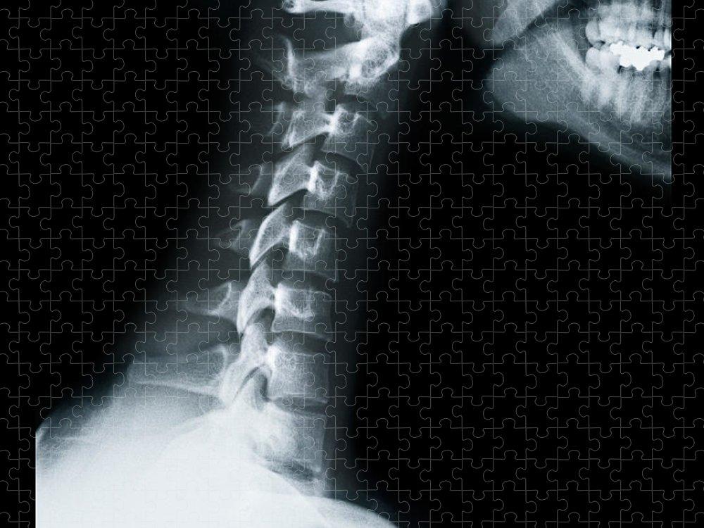Human Vertebra Puzzle featuring the photograph X Ray Of Neck Vertebrae by Anthony Bradshaw