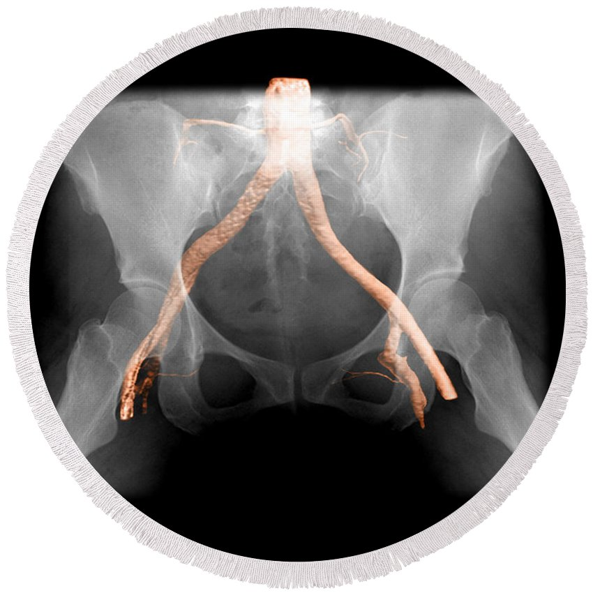 Xray Of Pelvis Round Beach Towel featuring the photograph X-ray Of Pelvis With Arteries by Living Art Enterprises