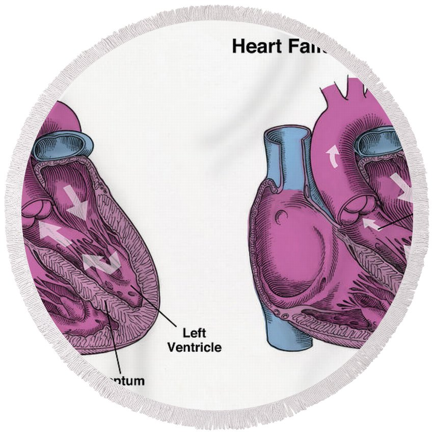 Science Round Beach Towel featuring the photograph Healthy Heart Vs. Heart Failure by Spencer Sutton