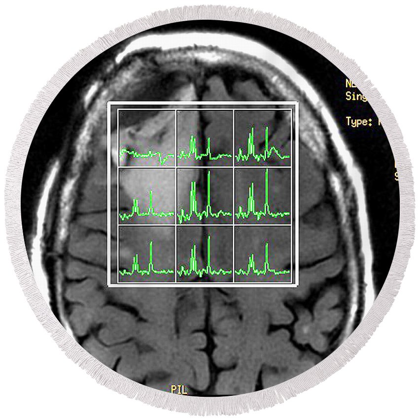 Mri Brain Round Beach Towel featuring the photograph Post Operative Mr Spectroscopy For Gbm by Living Art Enterprises