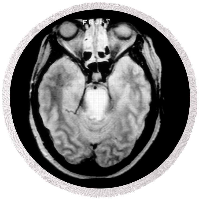Mri Of Brain Tumor Round Beach Towel featuring the photograph Mri Of Brainstem Glioma by Medical Body Scans