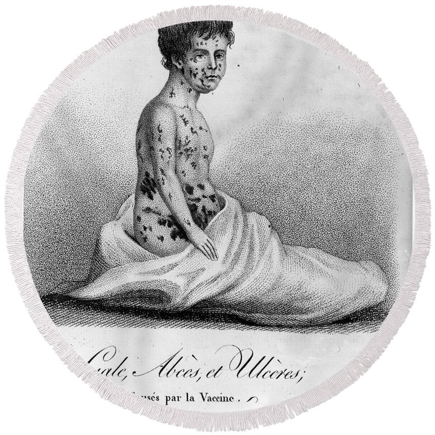 1807 Round Beach Towel featuring the photograph Smallpox Vaccination, 1807 by Granger