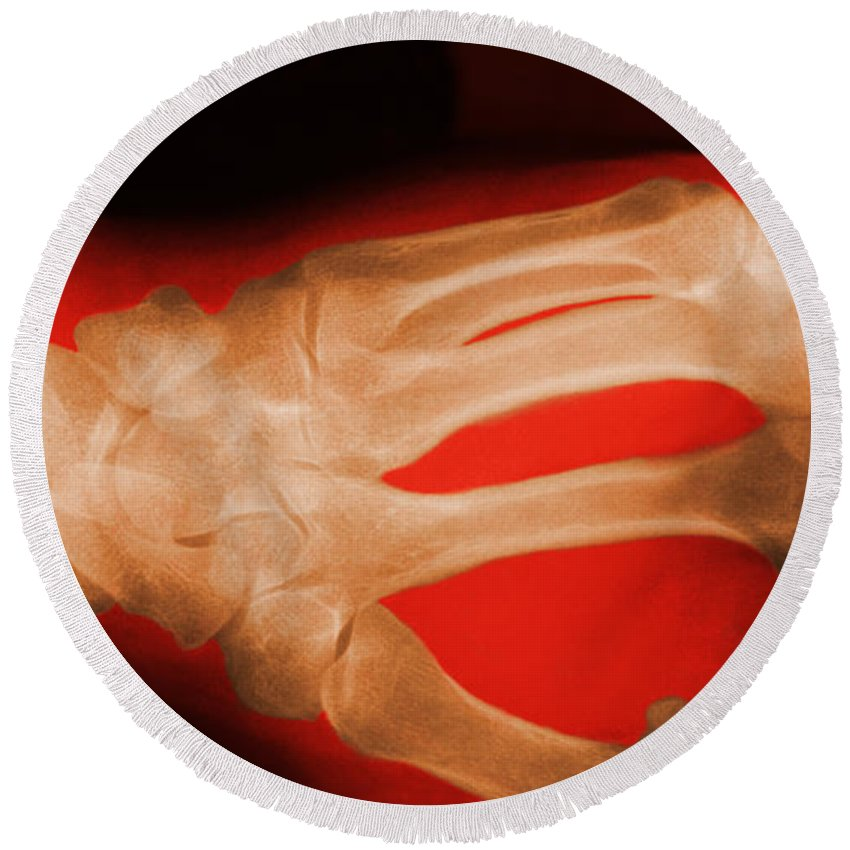 X-ray Round Beach Towel featuring the photograph Hand by George Mattei