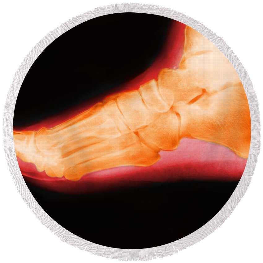 X-ray Round Beach Towel featuring the photograph Right Foot by George Mattei