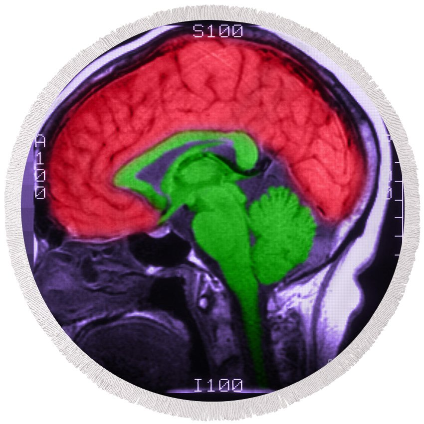 Brain Round Beach Towel featuring the photograph Mri Of Normal Brain by Science Source