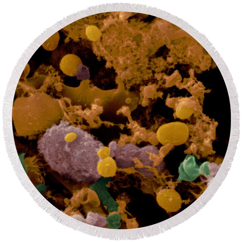 Toothbrush Round Beach Towel featuring the photograph Microbial Discharge From Toothbrush Sem by Scimat