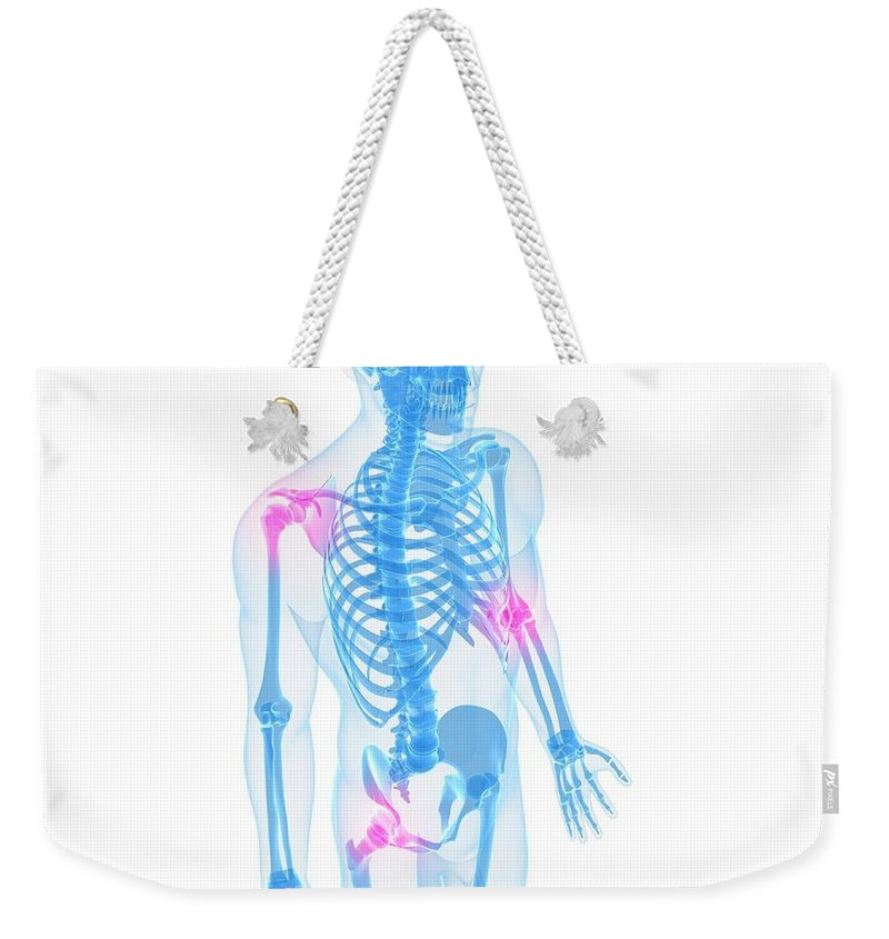 White Background Weekender Tote Bag featuring the digital art Joint Pain, Conceptual Artwork by Sciepro