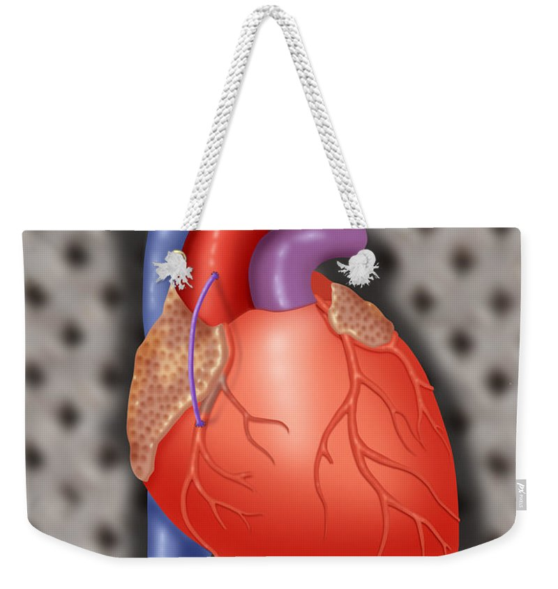 Anatomy Weekender Tote Bag featuring the photograph Coronary Vein Graft by Monica Schroeder / Science Source