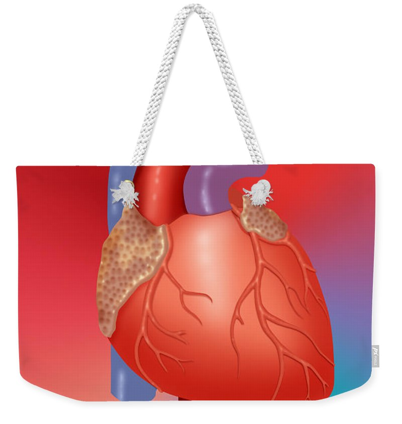 Anatomy Weekender Tote Bag featuring the photograph Human Heart by Monica Schroeder / Science Source