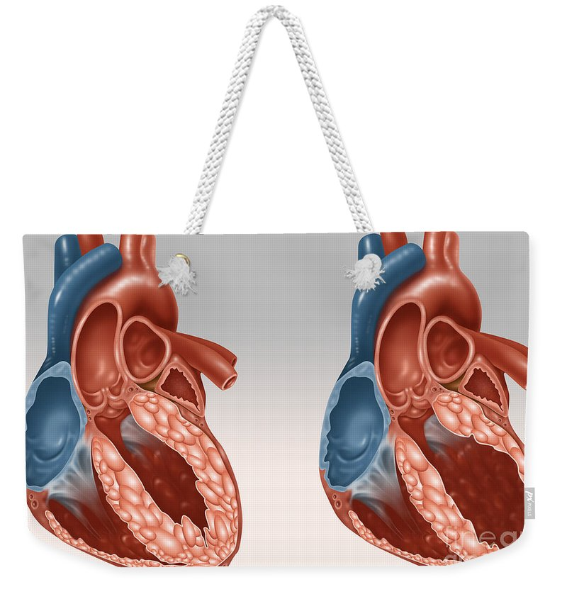 Medical Weekender Tote Bag featuring the photograph Normal And Diseased Hearts by Gwen Shockey