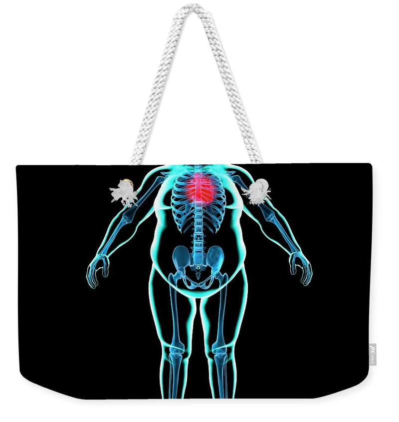 Risk Weekender Tote Bag featuring the digital art Obese Mans Heart, Artwork by Science Photo Library - Roger Harris