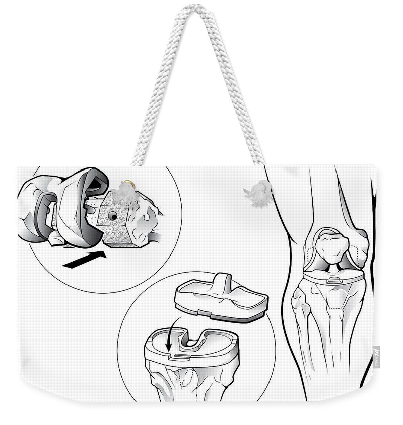 Anatomical Weekender Tote Bag featuring the photograph Total Knee Replacement Prosthetic by Evan Oto