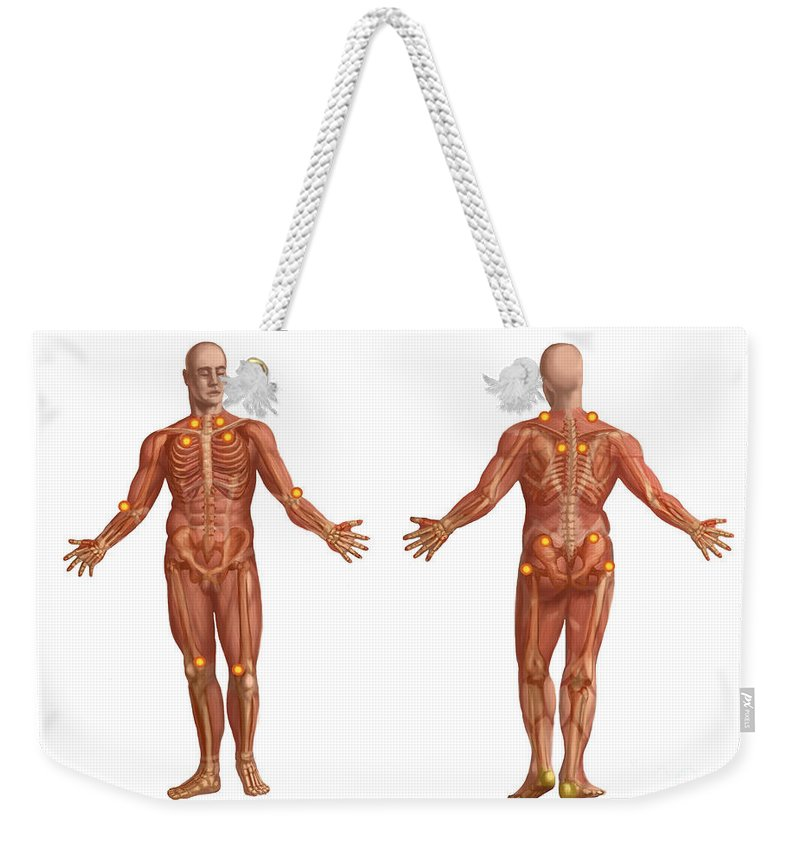Anatomical Weekender Tote Bag featuring the photograph Trigger Points On The Human Body by Spencer Sutton
