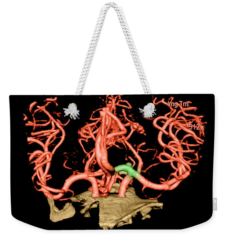 Abnormal Cerebral Blood Vessel Weekender Tote Bag featuring the photograph Ct Angiogram Of Aneurysm by Medical Body Scans