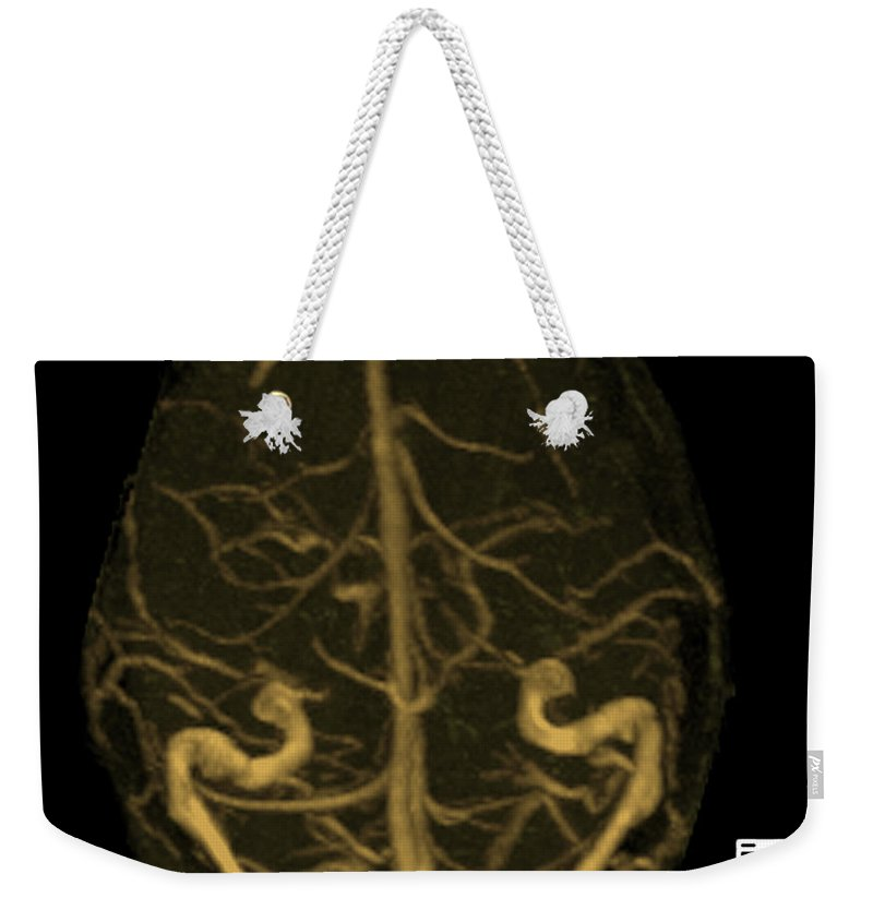 Mrv Weekender Tote Bag featuring the photograph Intracranial Magnetic Resonance Venogram by Medical Body Scans