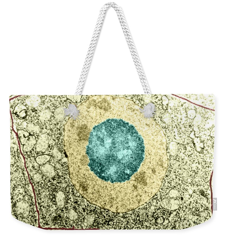 Tem Weekender Tote Bag featuring the photograph Normal Cell by Science Source