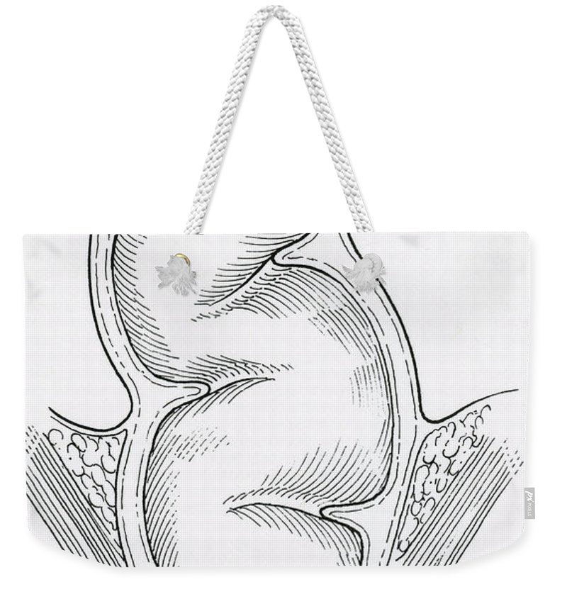Science Weekender Tote Bag featuring the photograph Rectum by Science Source
