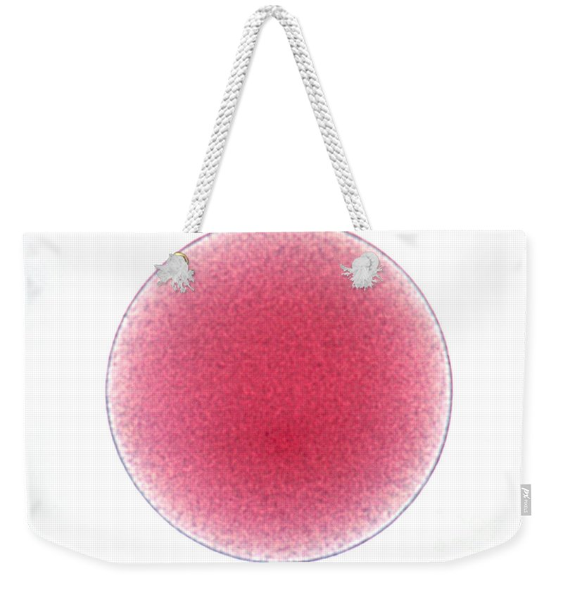 Starfish Weekender Tote Bag featuring the photograph Starfish Egg by Science Source