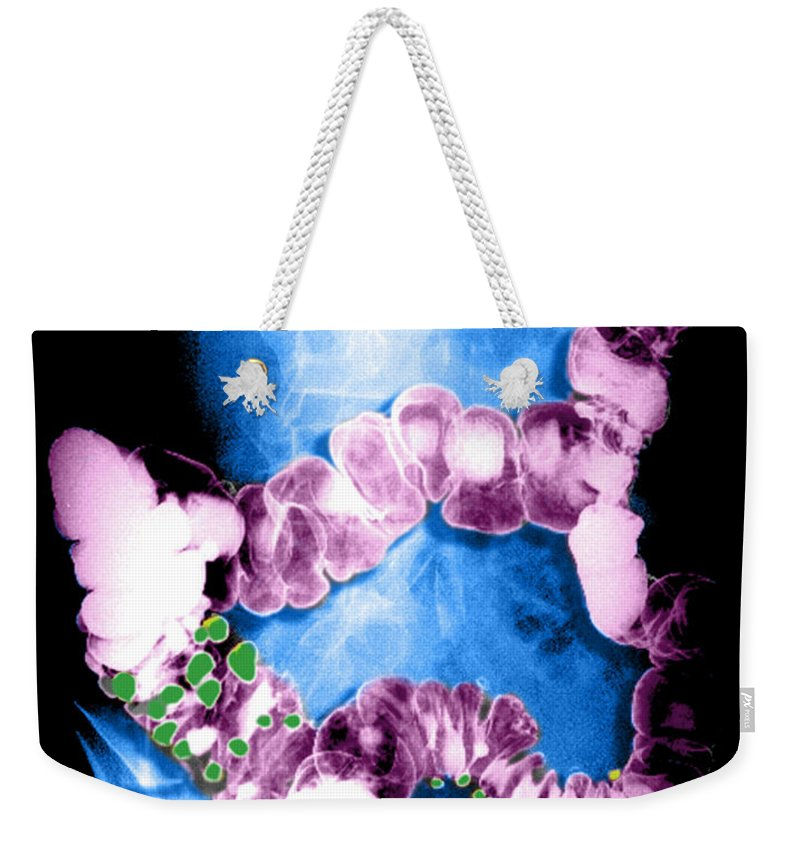 Barium Enema Weekender Tote Bag featuring the photograph Barium Enema Showing Diverticulosis by Medical Body Scans