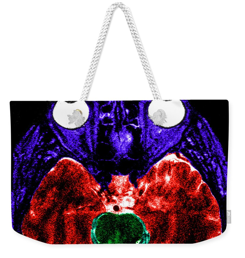 Brain Weekender Tote Bag featuring the photograph Mri Of Normal Brain by Science Source