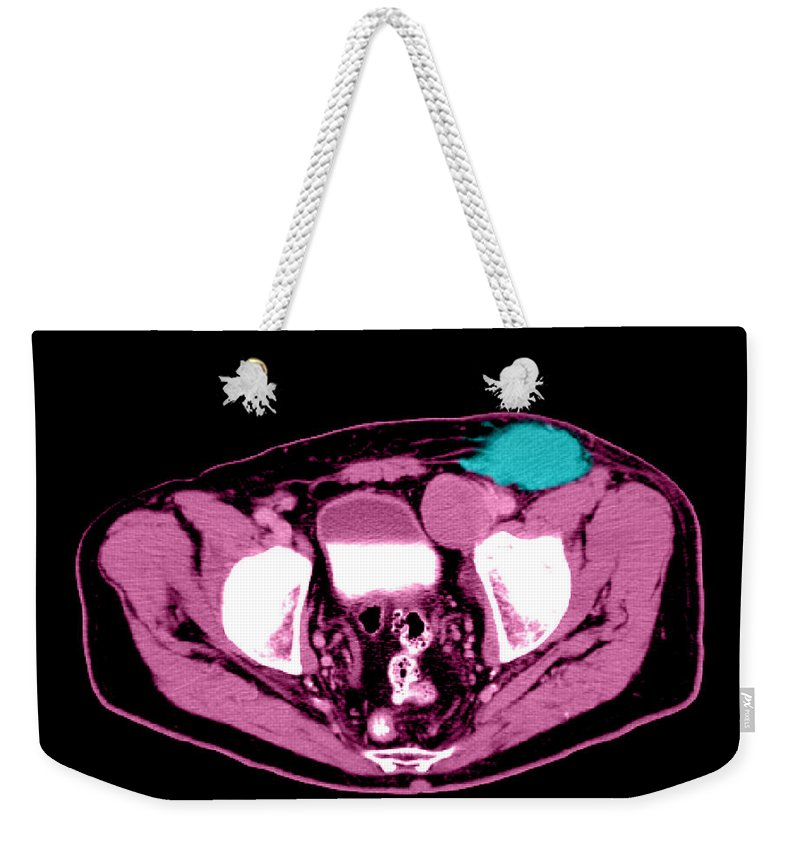 Anatomy Weekender Tote Bag featuring the photograph Non-hodgkins Lymphoma by Medical Body Scans