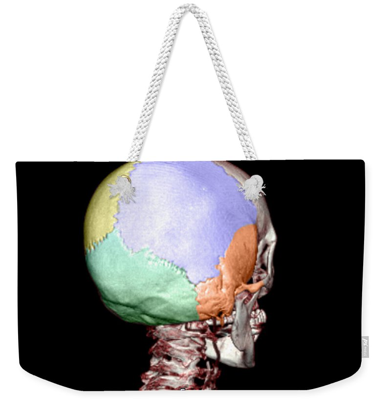Head Weekender Tote Bag featuring the photograph Human Skull by Medical Body Scans