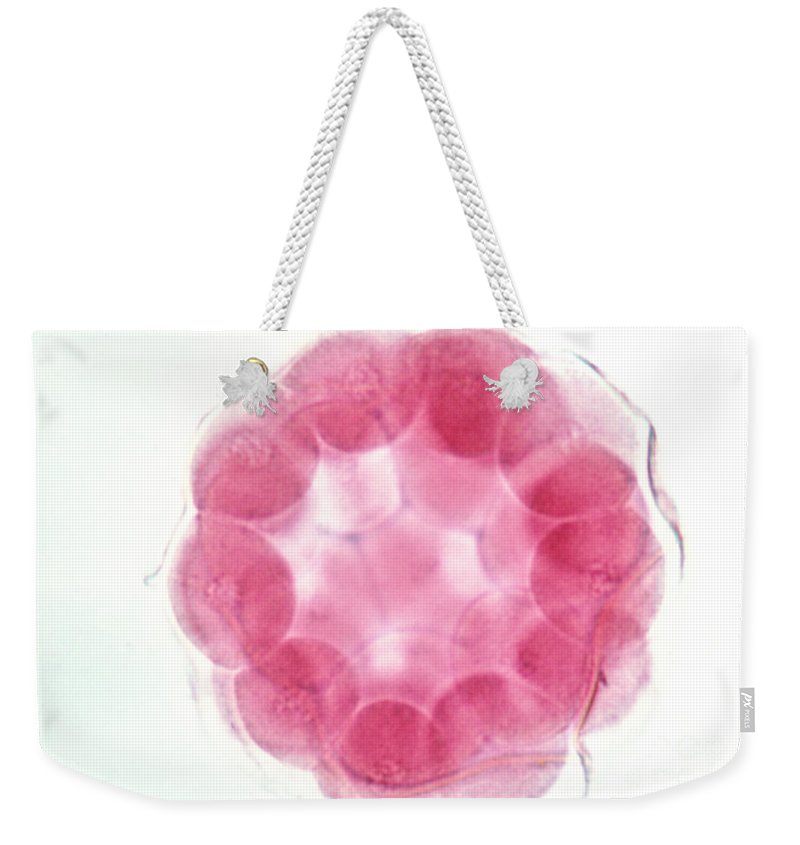 Starfish Weekender Tote Bag featuring the photograph Starfish Embryo by Science Source