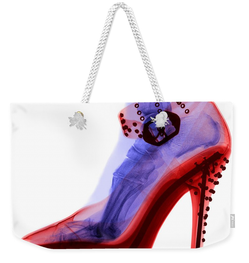 Shoe Weekender Tote Bag featuring the photograph An X-ray Of A Foot In A High Heel Shoe by Ted Kinsman