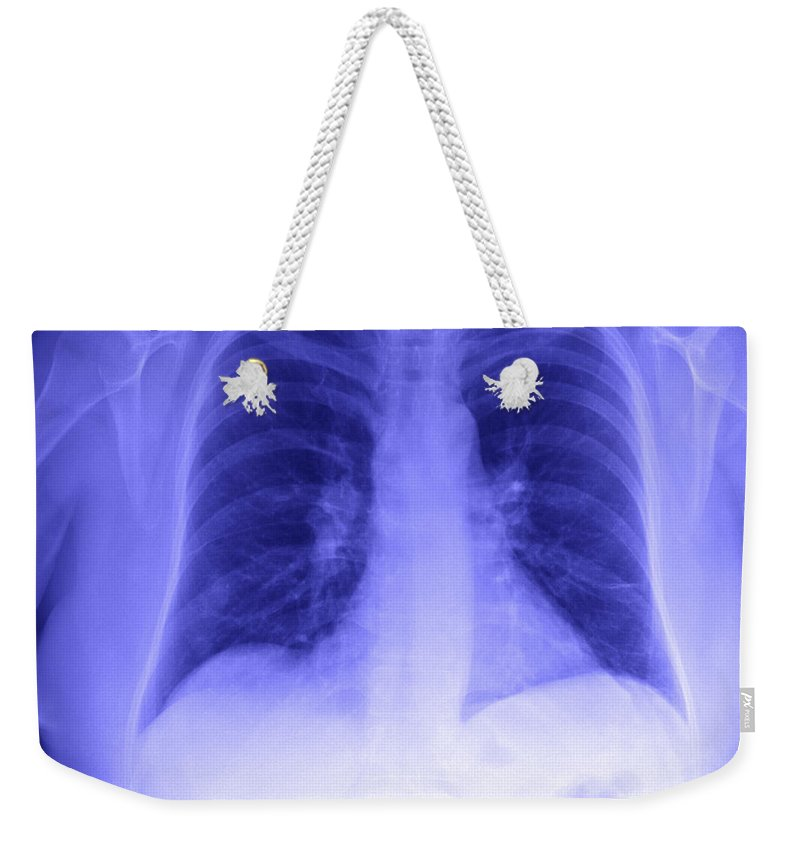 Xray Weekender Tote Bag featuring the photograph Chest X-ray by Ted Kinsman