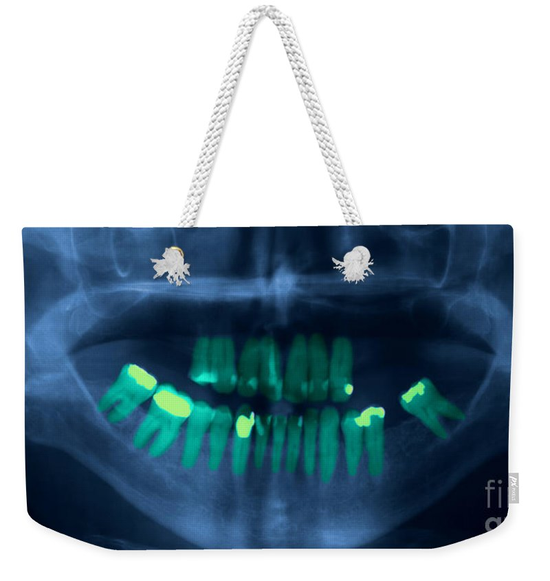 X-ray Weekender Tote Bag featuring the photograph Dental X-ray by Ted Kinsman