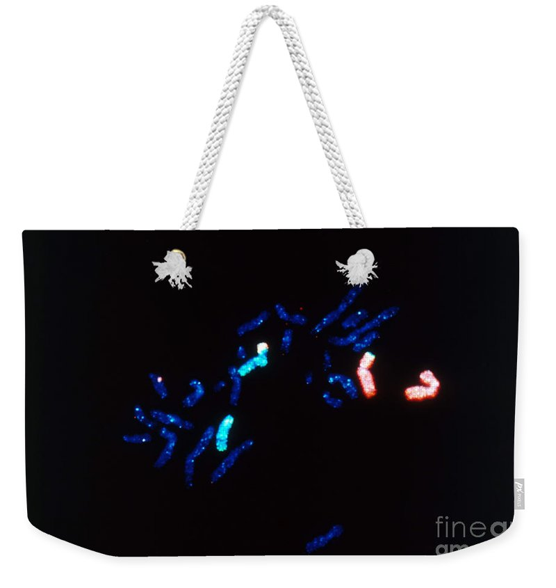 Histology Weekender Tote Bag featuring the photograph Fish Micrograph Of Chromosomes by Science Source