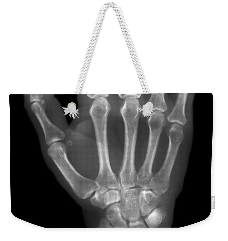 Hand Weekender Tote Bag featuring the photograph Normal Hand by Ted Kinsman