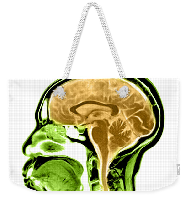 Anatomical Weekender Tote Bag featuring the photograph Sagittal View Of An Mri Of The Brain by Medical Body Scans
