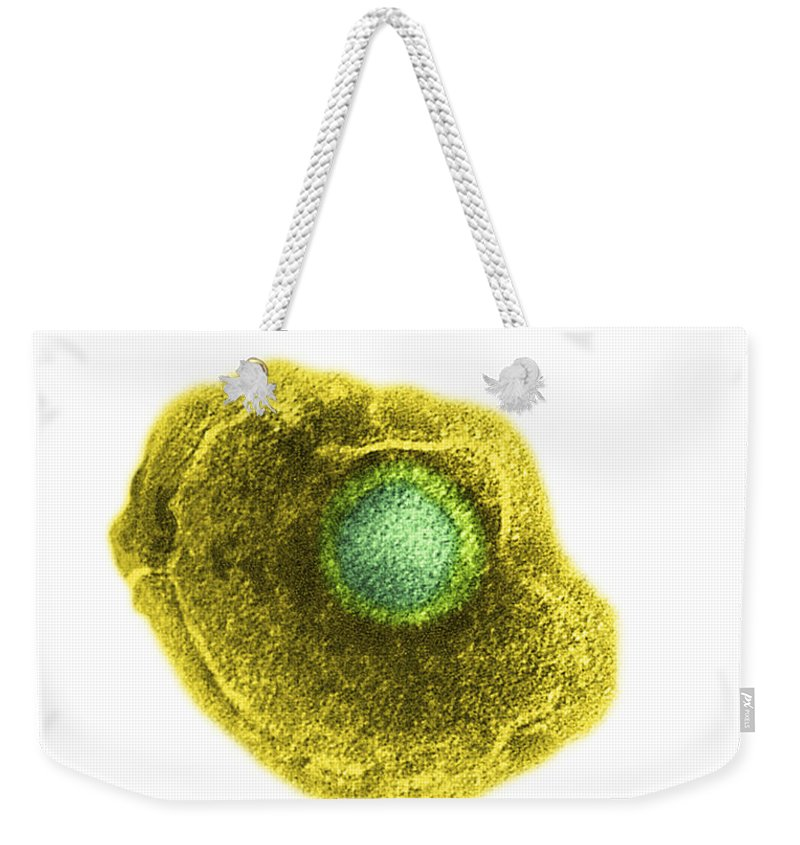 Chickenpox Weekender Tote Bag featuring the photograph Varicella Chickenpox Virus by Science Source