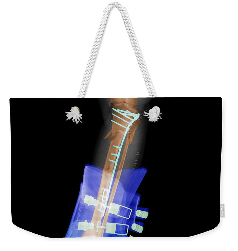 X-ray Weekender Tote Bag featuring the photograph X-ray Of Broken Bones In Ski Boot by Ted Kinsman