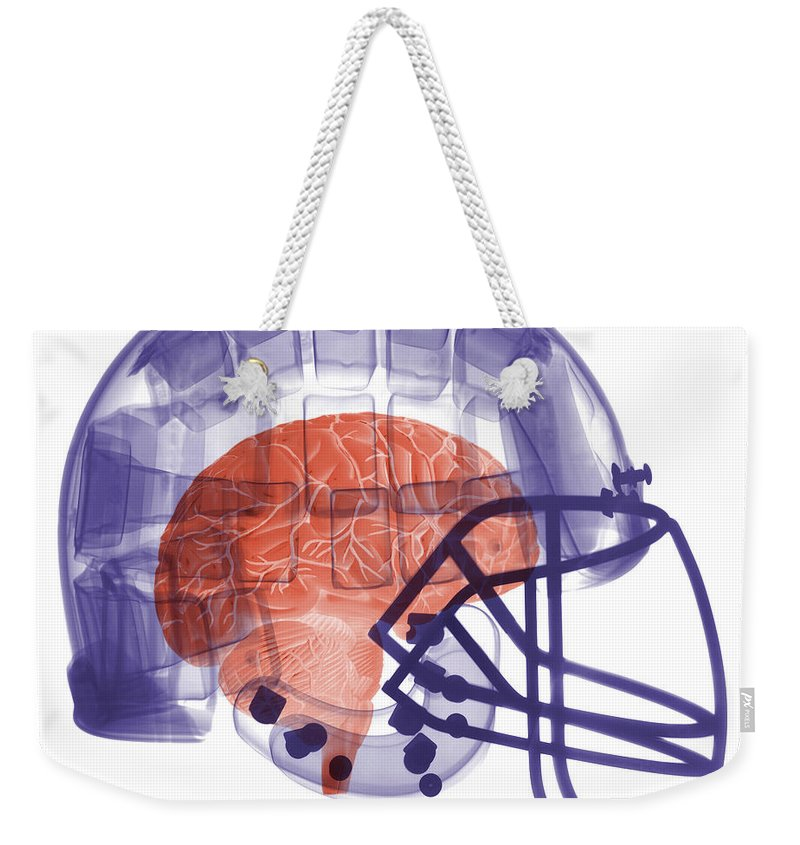 Football Helmet Weekender Tote Bag featuring the photograph X-ray Of Head In Football Helmet by Ted Kinsman