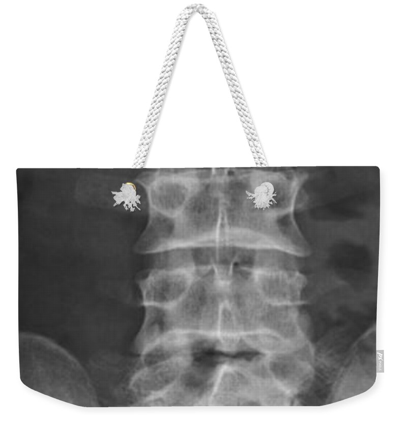 Xray Weekender Tote Bag featuring the photograph X-ray Of Lower Lumbar Spine by Ted Kinsman