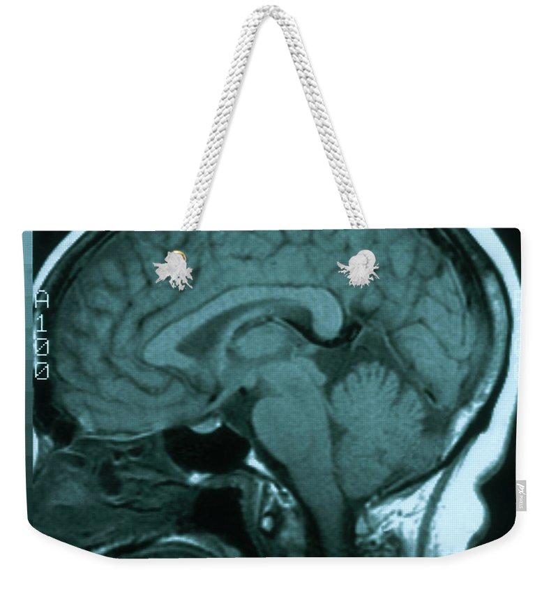 Magnetic Resonance Image Weekender Tote Bags