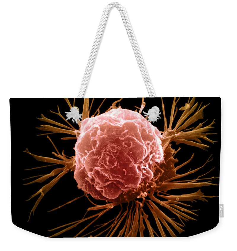 Sem Weekender Tote Bag featuring the photograph Breast Cancer Cell by Science Source