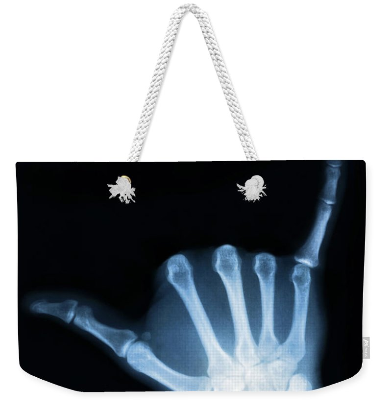 X-ray Weekender Tote Bag featuring the photograph Hang Loose by Gravityx9 Designs