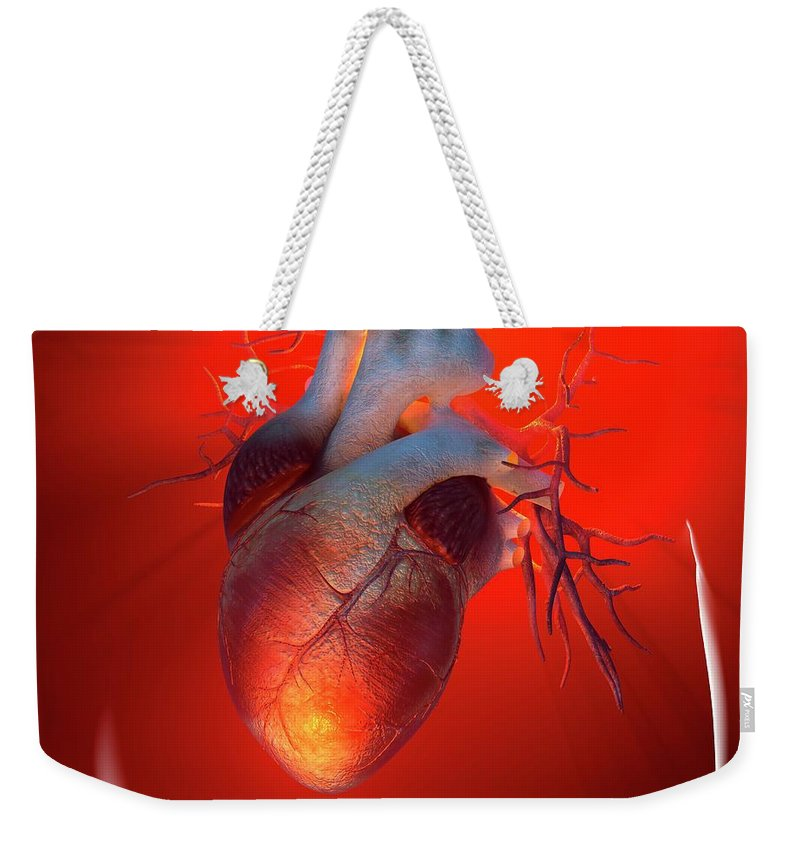 Event Weekender Tote Bag featuring the digital art Heart Attack, Conceptual Artwork by Science Photo Library - Roger Harris
