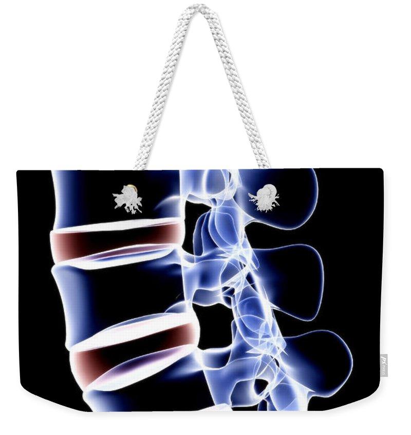 Human Vertebra Weekender Tote Bag featuring the digital art The Lumbar Vertebrae by Medicalrf.com
