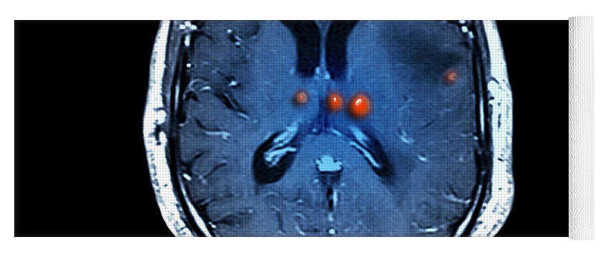 Mri Yoga Mat featuring the photograph Brain Tumors by Medical Body Scans