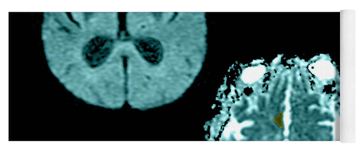 Mri Yoga Mat featuring the photograph Mri Of Stroke by Medical Body Scans
