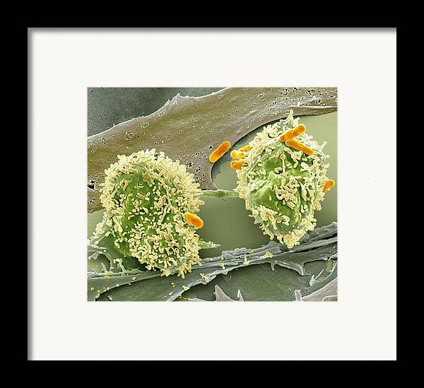 Abnormal Framed Print featuring the photograph Dividing Cancer Cell, Sem by Science Photo Library