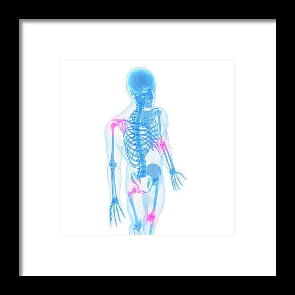 White Background Framed Print featuring the digital art Joint Pain, Conceptual Artwork by Sciepro