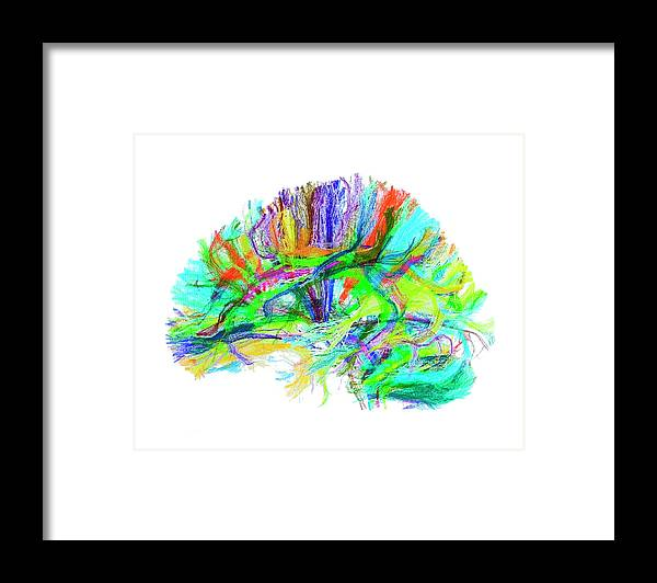 Brain Framed Print featuring the photograph Advanced Mri Brain Scan by Philippe Psaila/science Photo Library