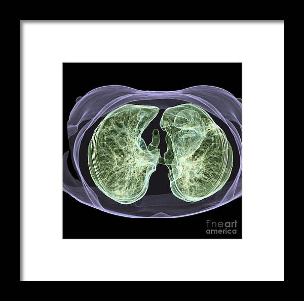 Healthy Lungs 3d Ct Scan Framed Print By Zephyr